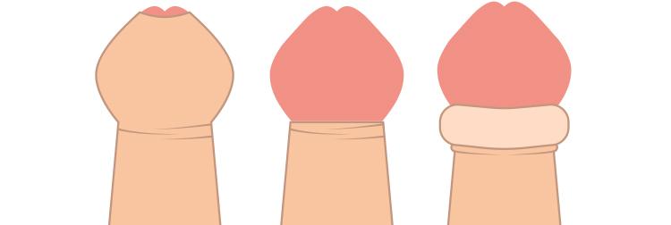 カントン包茎の症状による種類