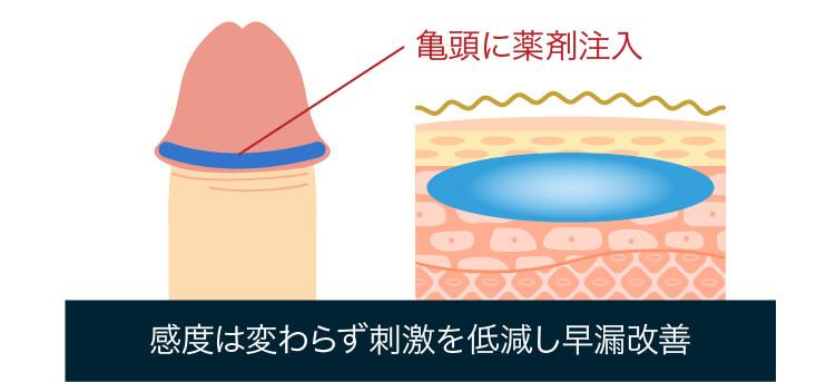 亀頭強化による早漏治療