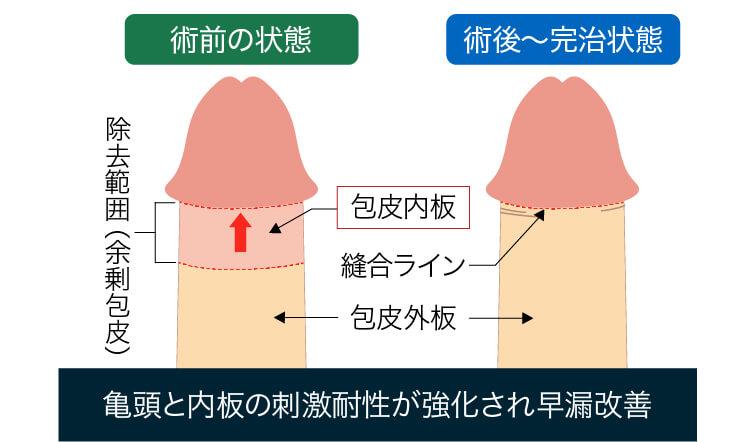包茎手術による早漏治療