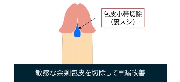 包皮小帯切除による早漏治療